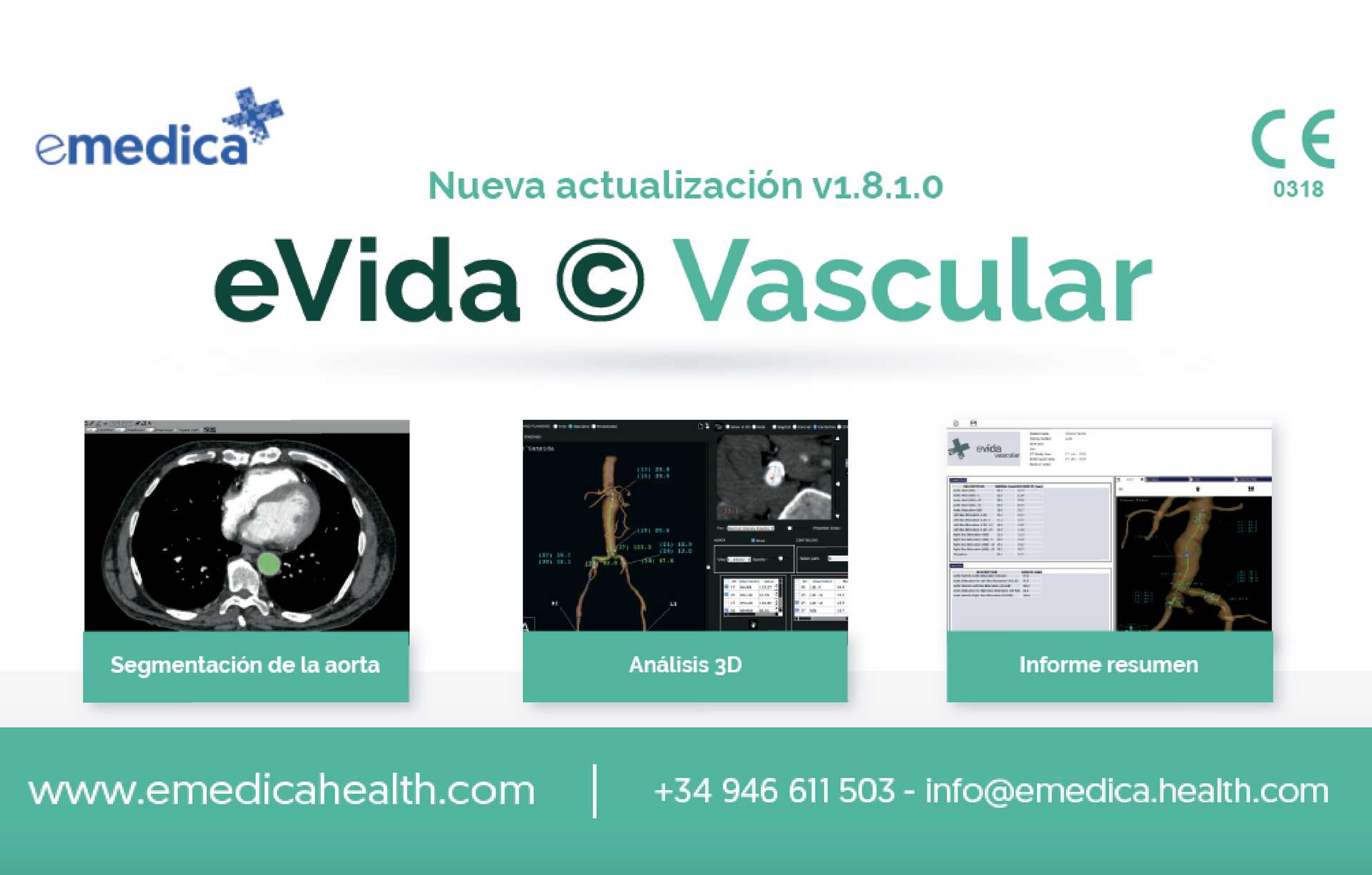 New update for eVida©Vascular: improving the user experience